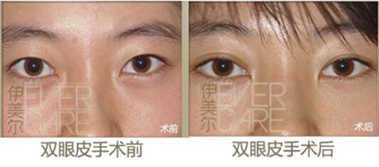 青岛微创双眼皮手术 精细打造无痕媚眼 图