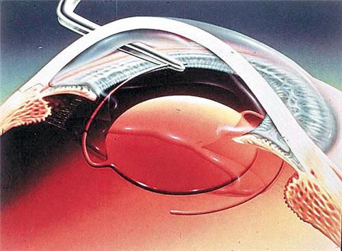 手术费用_温州白内障手术费用(包括单眼人工晶体)