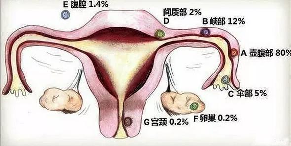 异位设计:嘿受精卵你跑错机构了地方妊娠卷棉机械造图图片